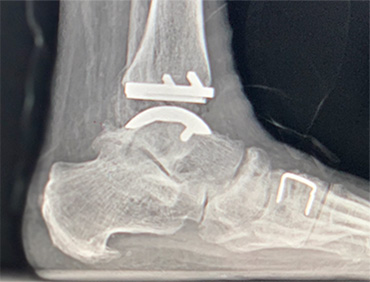 Ankle Replacement and Valgus Deformity
